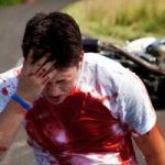 Motorcycle Attorney for Brain Injuries