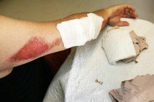 motorcycle injury lawyer Pennsylvania medical bills