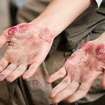 Pennsylvania Motorcycle Accident Lawyer Looks at Road Rash